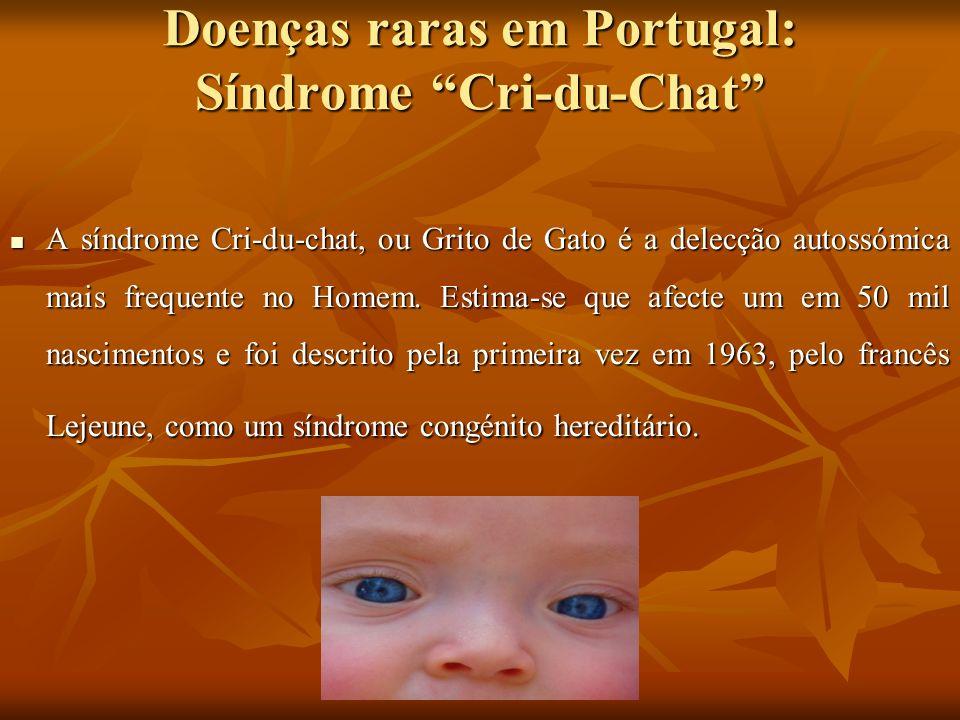 Doenças raras em Portugal: Síndrome Cri-du-Chat
