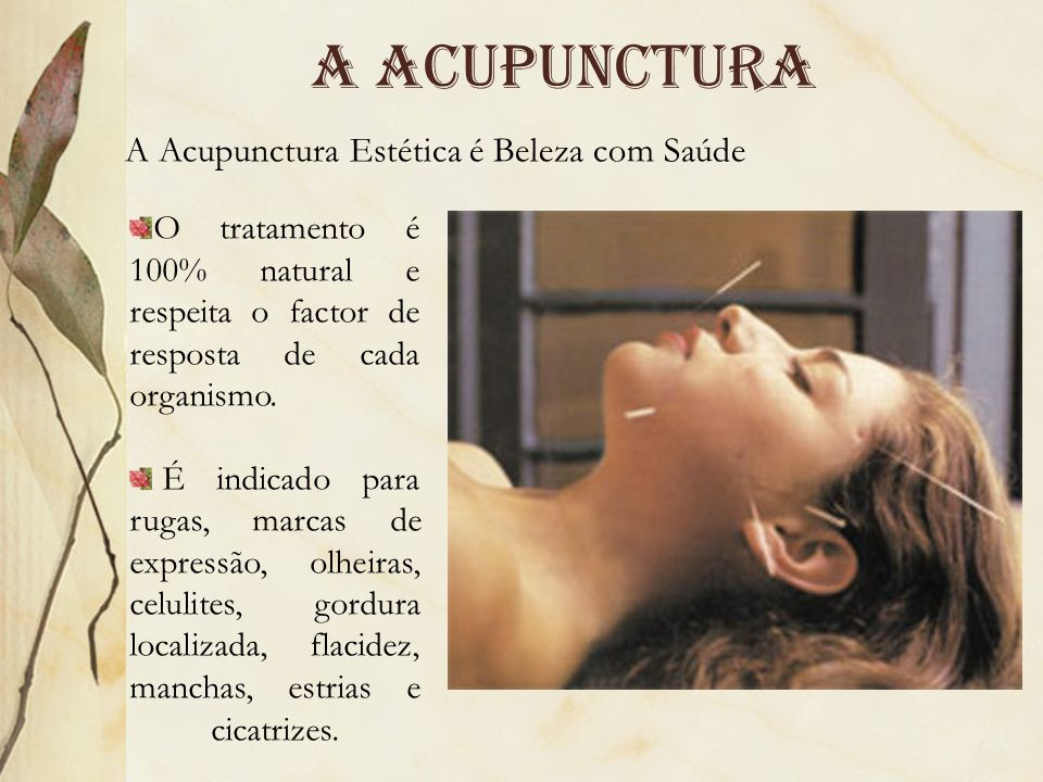 A acupunctura A Acupunctura Estética é Beleza com Saúde