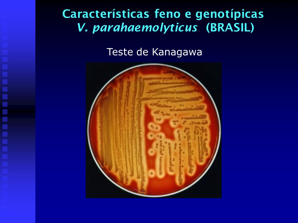 Características feno e genotípicas V. parahaemolyticus (BRASIL)