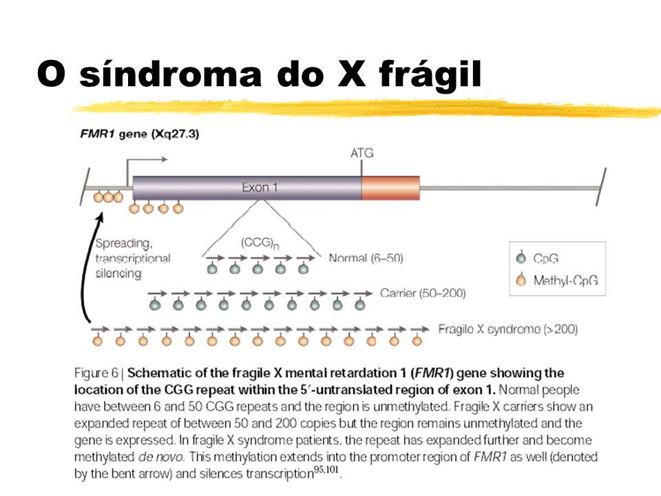 O síndroma do X frágil