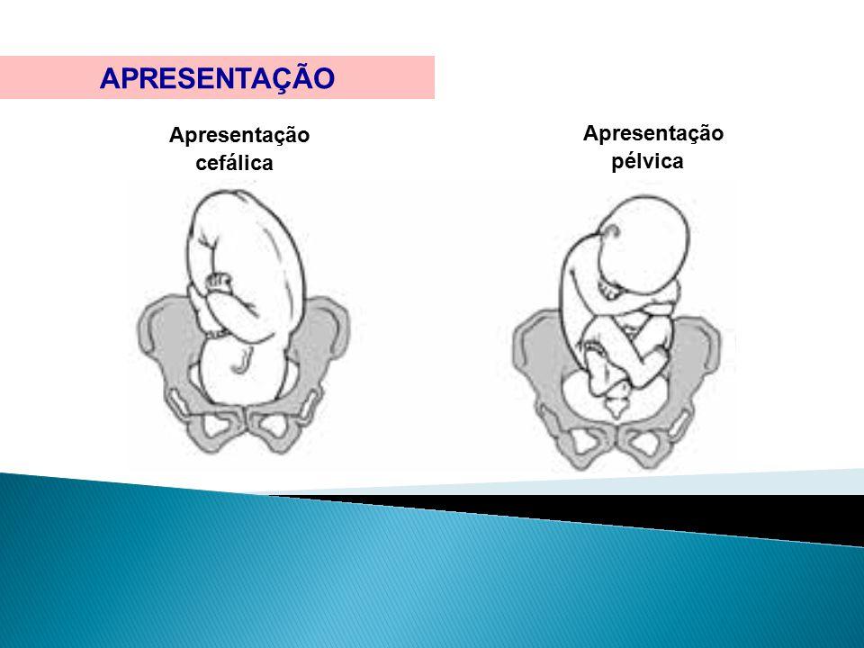 Feto em situacao longitudinal apresentacao cefalica com dorso a direita