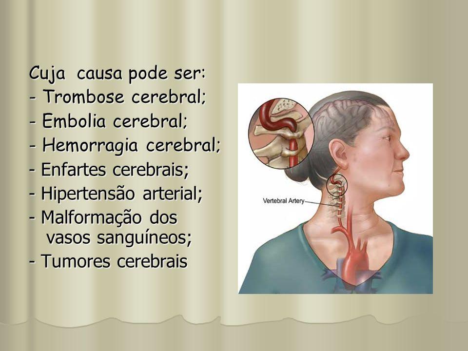 Cuja causa pode ser: - Trombose cerebral; - Embolia cerebral; - Hemorragia cerebral; - Enfartes cerebrais;