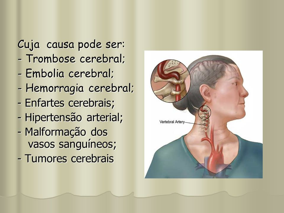 Cuja causa pode ser:- Trombose cerebral; - Embolia cerebral; - Hemorragia cerebral; - Enfartes cerebrais;