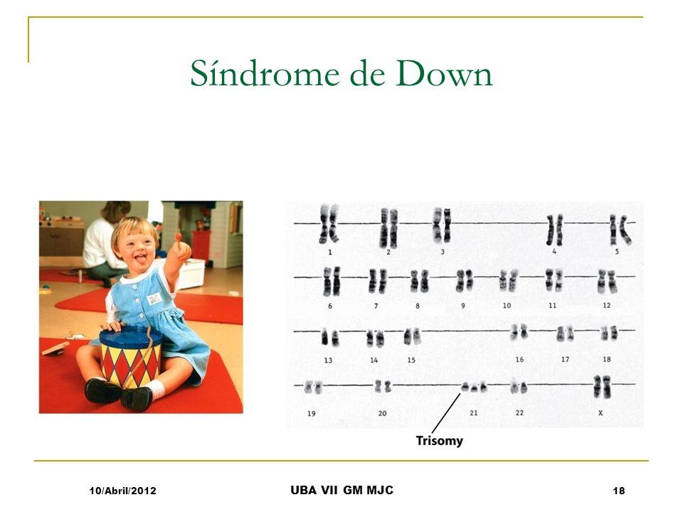 Síndrome de Down 10/Abril/2012 UBA VII GM MJC