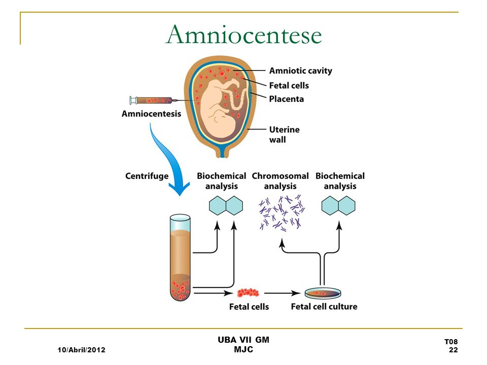 Amniocentese 10/Abril/2012 UBA VII GM MJC