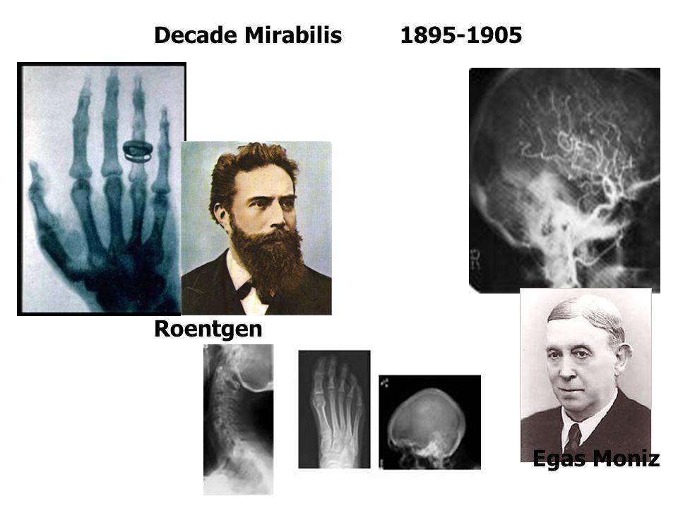 Decade Mirabilis 1895-1905 Egas Moniz Roentgen