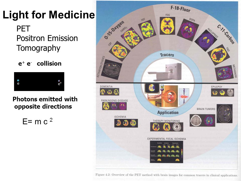 Light for Medicine PET Positron Emission Tomography E= m c 2