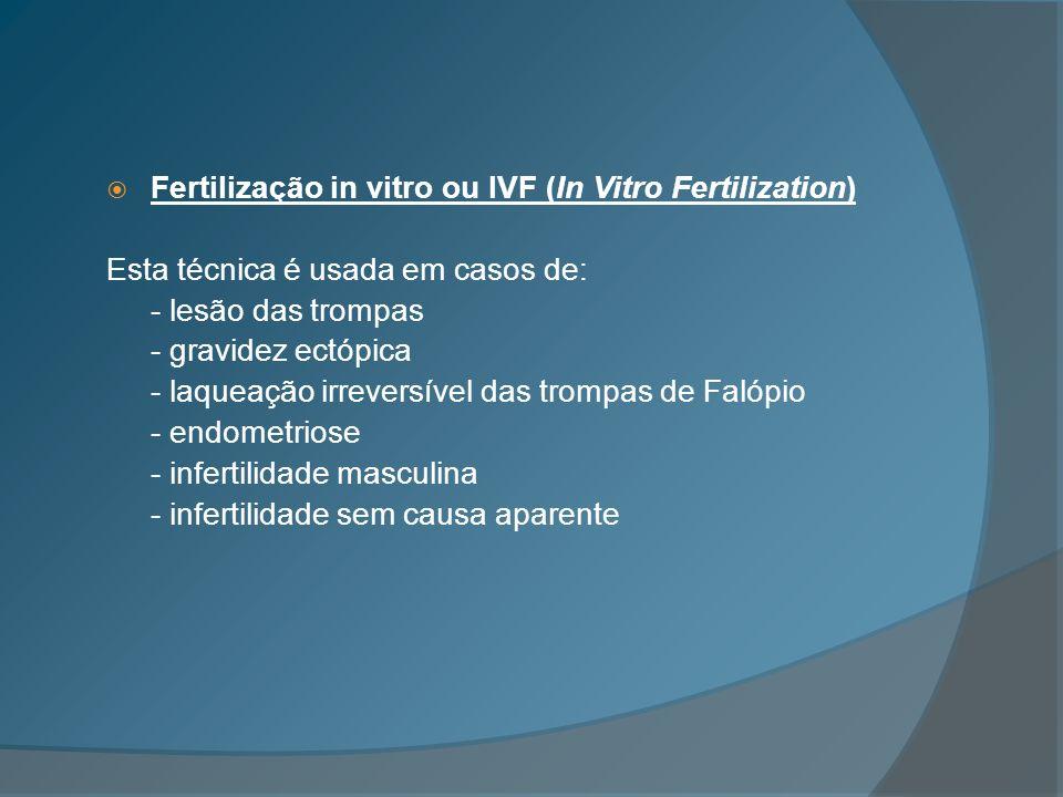 Fertilização in vitro ou IVF (In Vitro Fertilization)