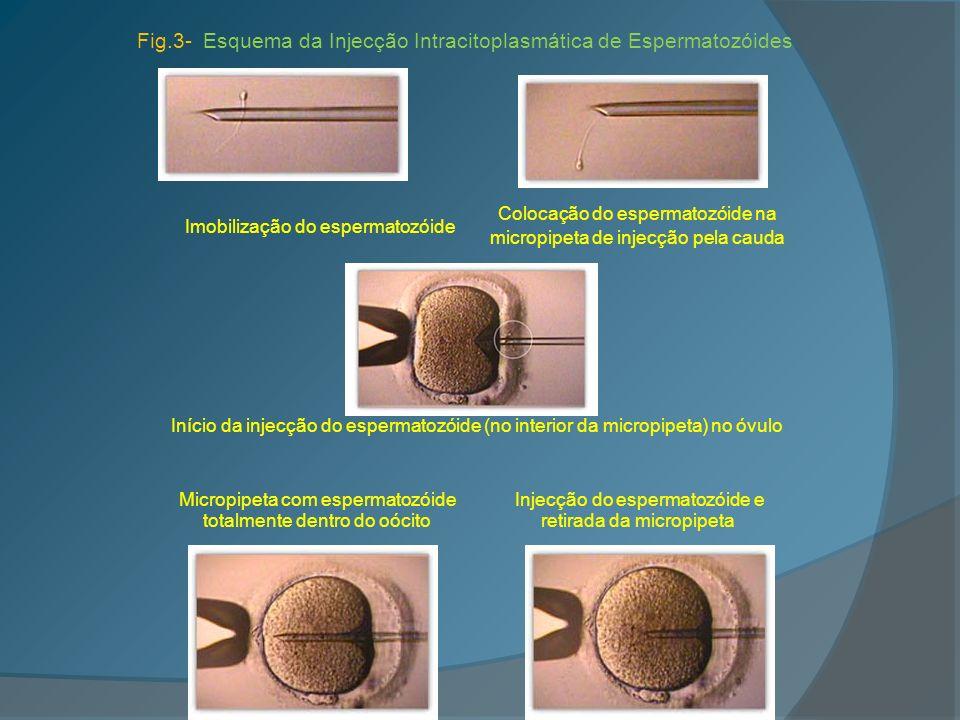 Fig.3- Esquema da Injecção Intracitoplasmática de Espermatozóides