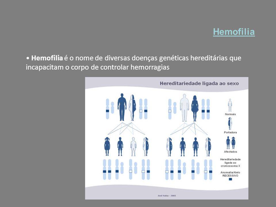 Hemofilia Hemofilia é o nome de diversas doenças genéticas hereditárias que incapacitam o corpo de controlar hemorragias.