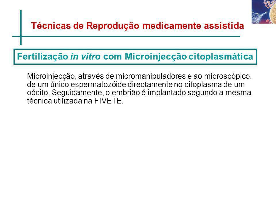 Fertilização in vitro com Microinjecção citoplasmática