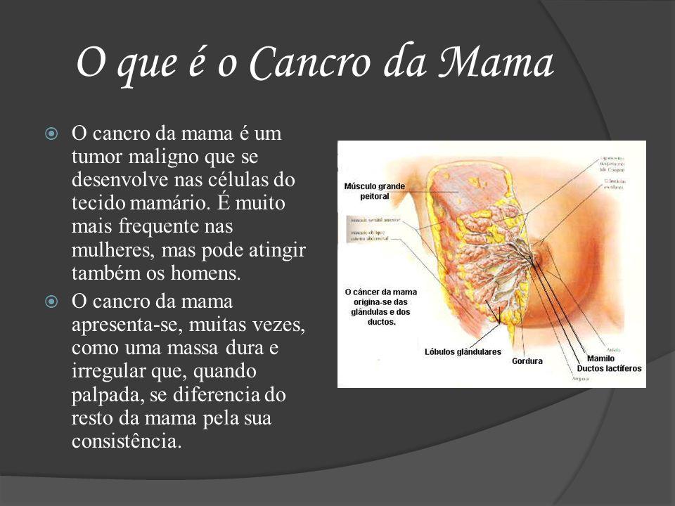 O que é o Cancro da Mama