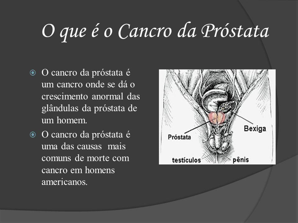 O que é o Cancro da Próstata