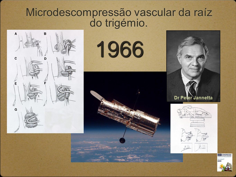 Microdescompressão vascular da raíz do trigémio.