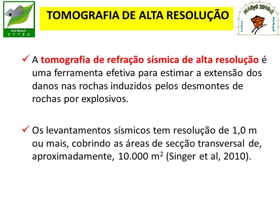 TOMOGRAFIA DE ALTA RESOLUÇÃO