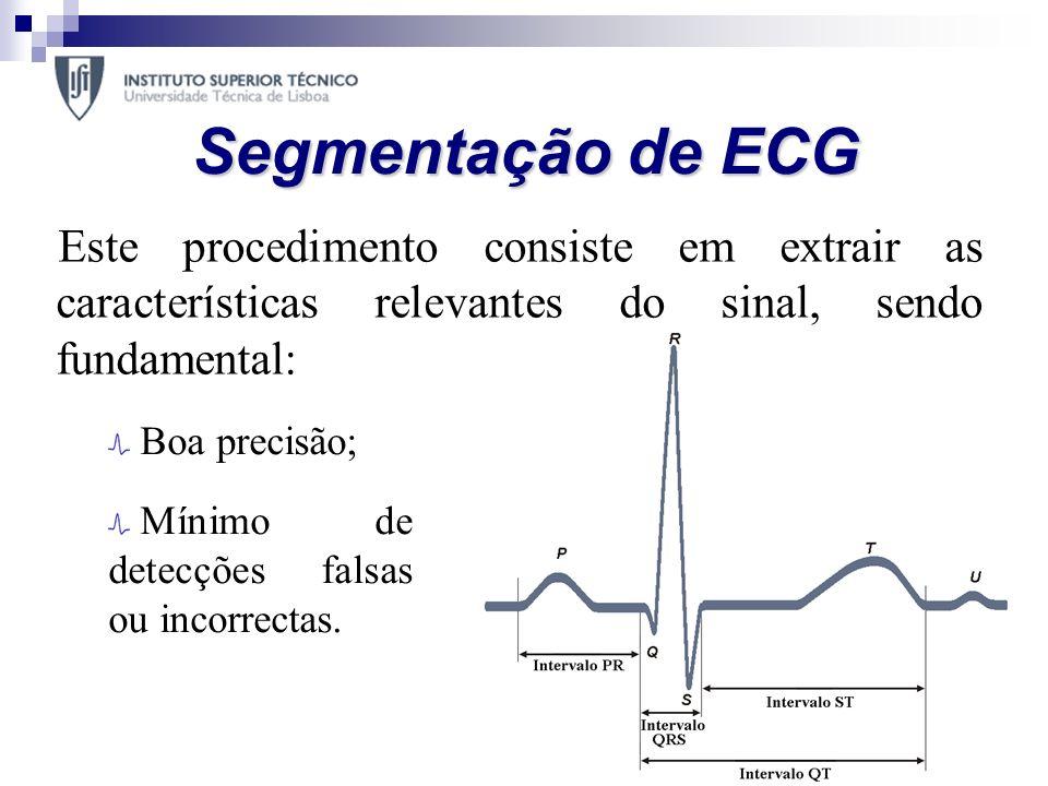 Segmentação de ECG Este procedimento consiste em extrair as características relevantes do sinal, sendo fundamental: