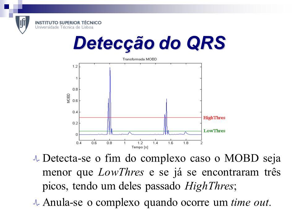 Detecção do QRS Os passos fundamentais do algoritmo são: