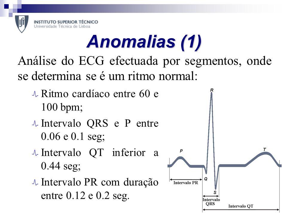 Anomalias (1) Análise do ECG efectuada por segmentos, onde se determina se é um ritmo normal: Ritmo cardíaco entre 60 e 100 bpm;