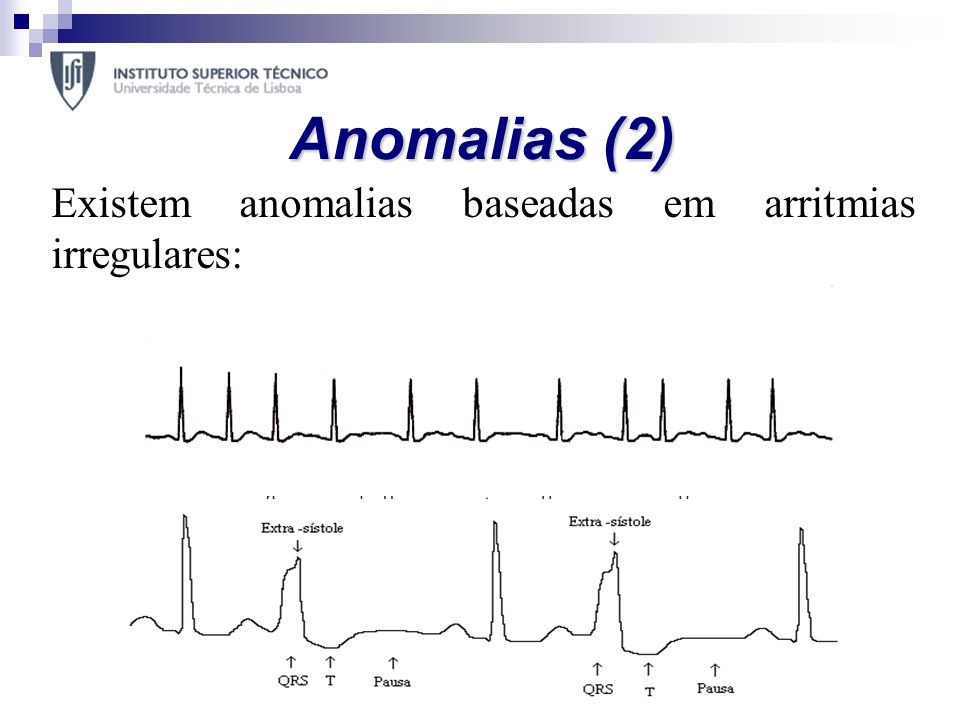 Anomalias (2) Existem anomalias baseadas em arritmias irregulares:
