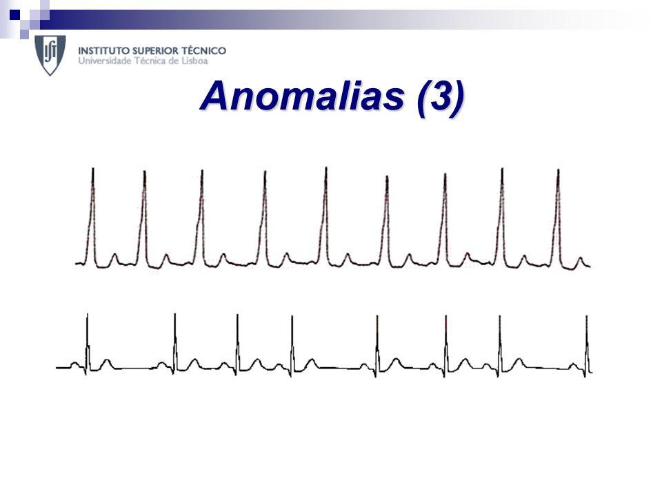 Anomalias (3) E em arritmias regulares: