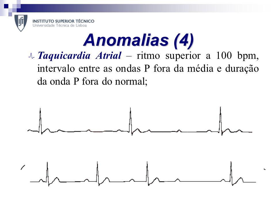Anomalias (4) Taquicardia Atrial – ritmo superior a 100 bpm, intervalo entre as ondas P fora da média e duração da onda P fora do normal;