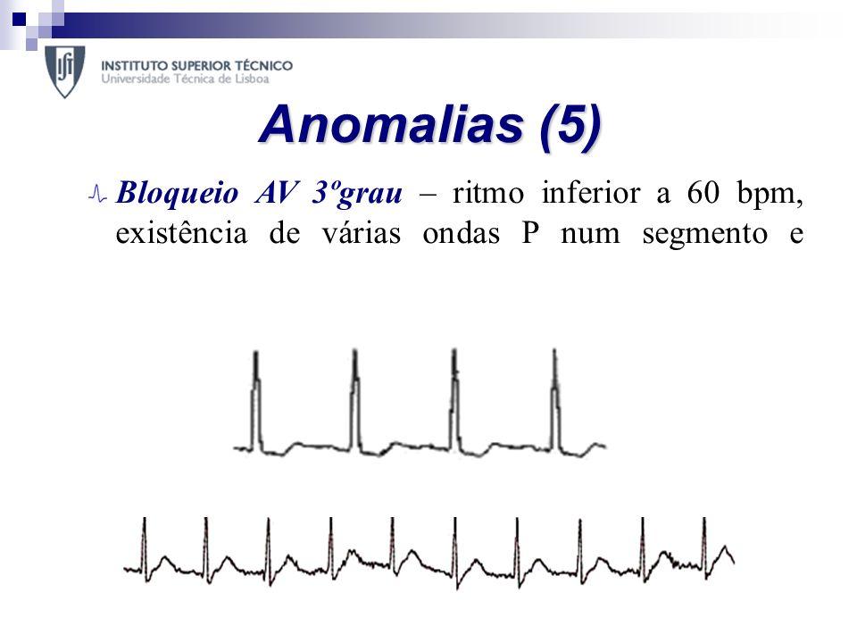 Anomalias (5) Bloqueio AV 3ºgrau – ritmo inferior a 60 bpm, existência de várias ondas P num segmento e intervalo PR inconstante;