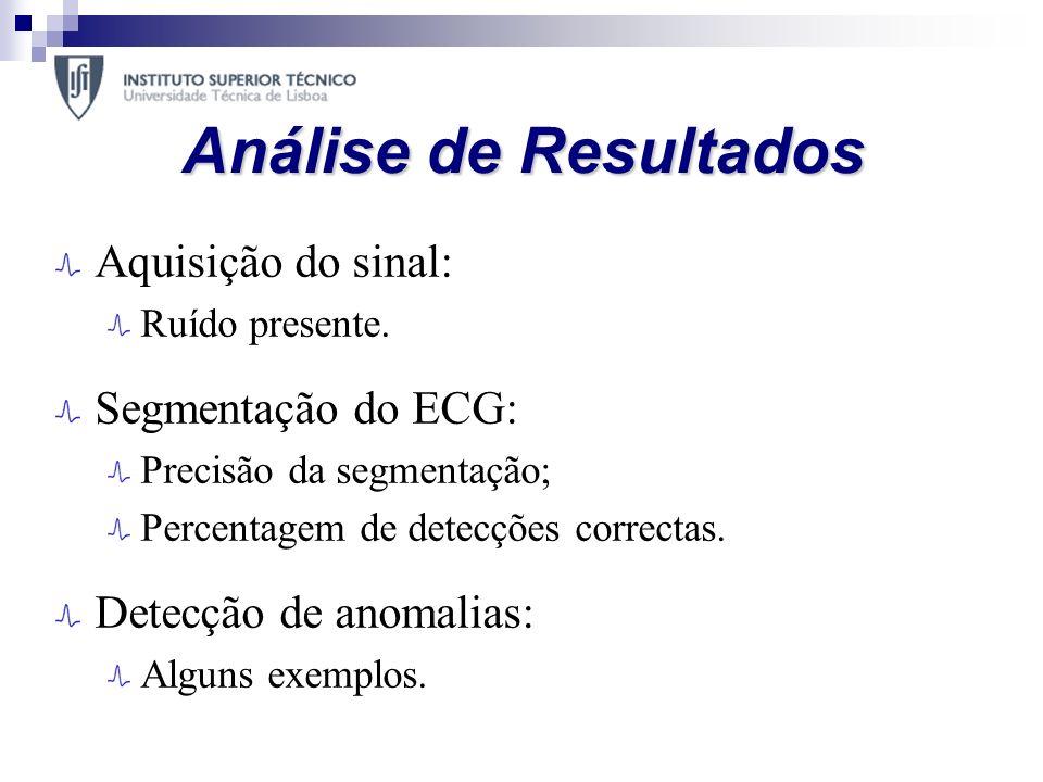 Análise de Resultados Aquisição do sinal: Segmentação do ECG: