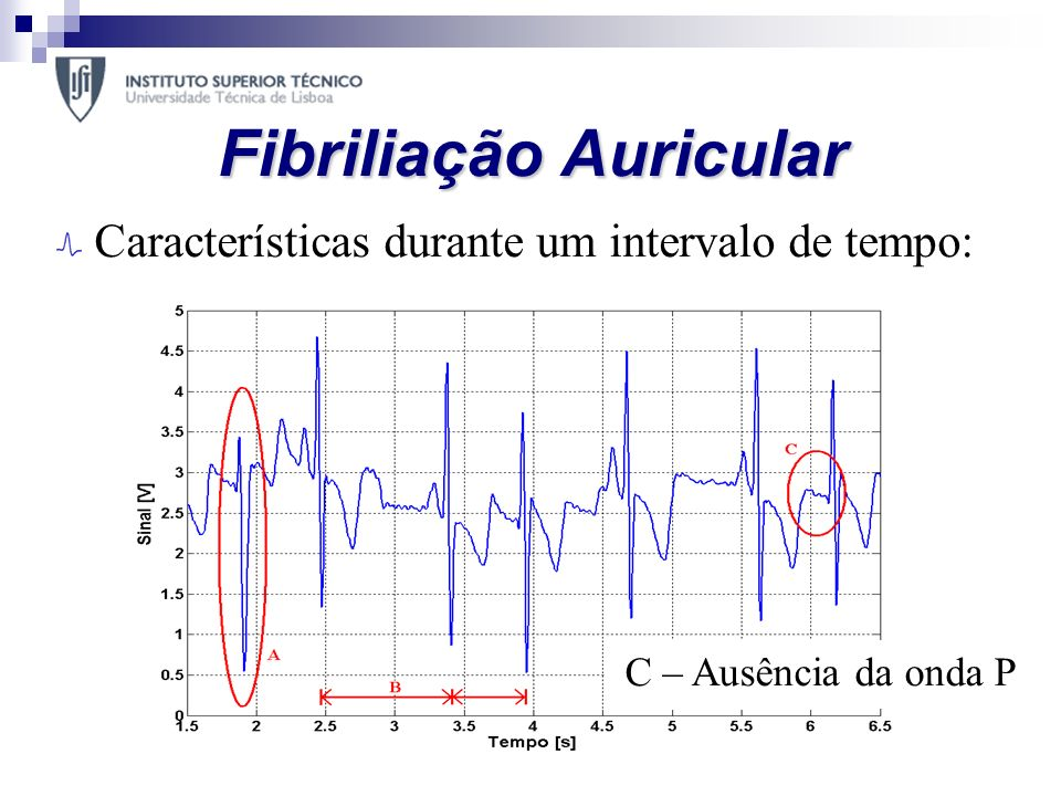 Fibriliação Auricular