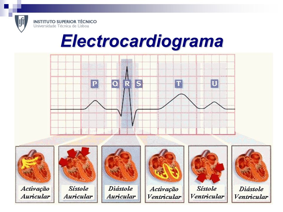 Electrocardiograma O electrocardiograma (ECG) é o método mais simples e importante no diagnóstico de doenças cardiovasculares.