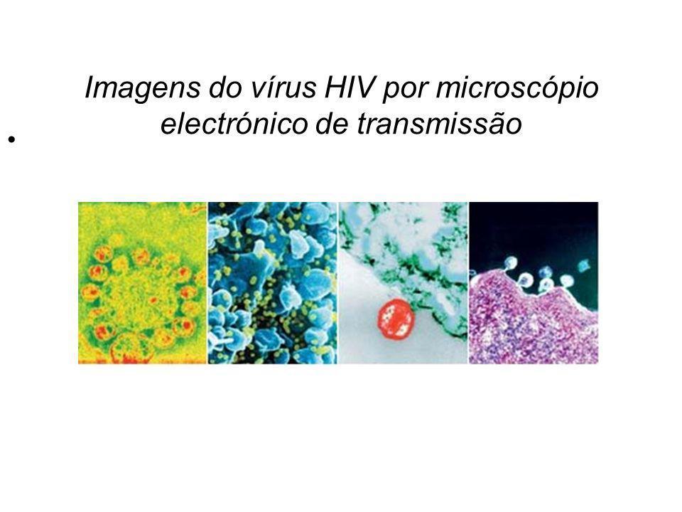 Imagens do vírus HIV por microscópio electrónico de transmissão