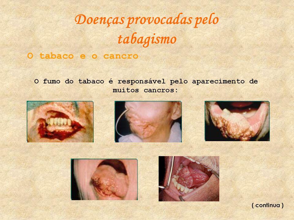 Doenças provocadas pelo tabagismo