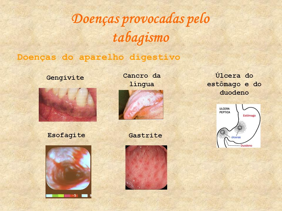 Doenças provocadas pelo tabagismo Úlcera do estômago e do duodeno
