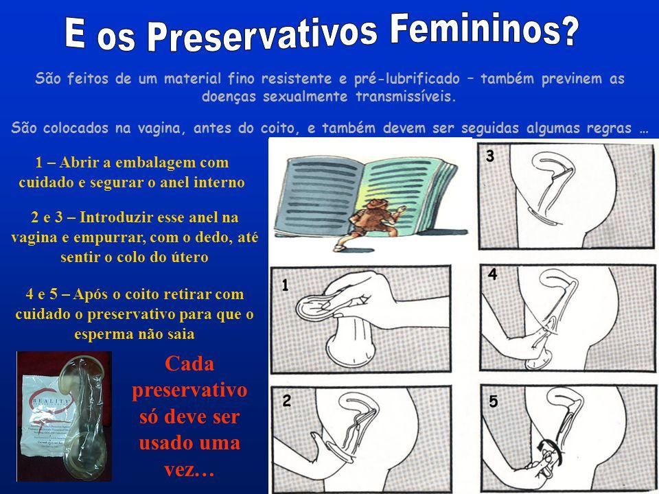E os Preservativos Femininos
