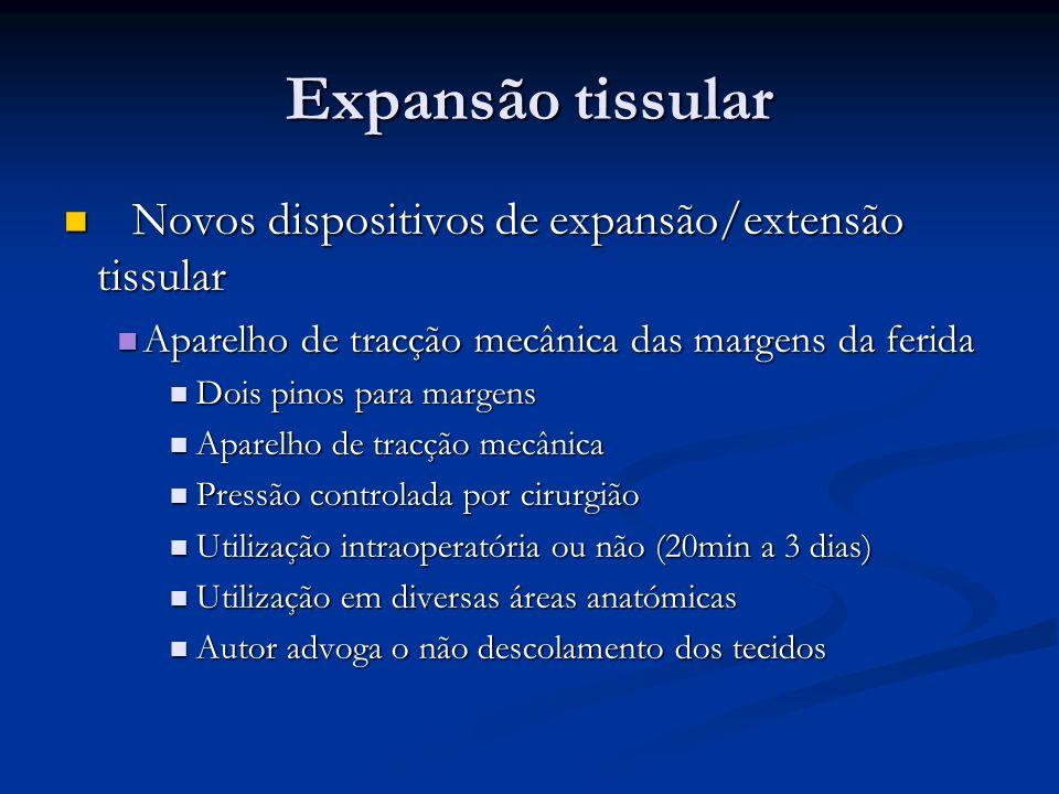 Expansão tissular Novos dispositivos de expansão/extensão tissular