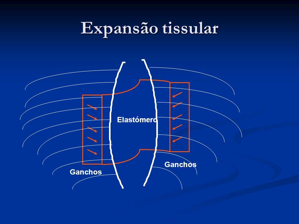 Expansão tissular Elastómero Ganchos Ganchos