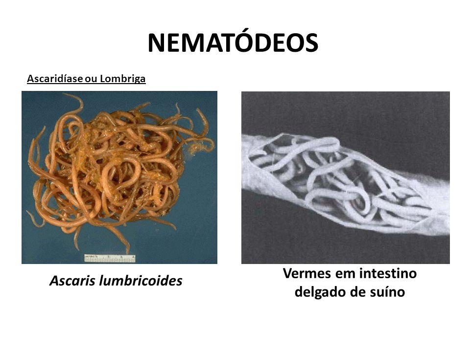 Vermes em intestino delgado de suíno
