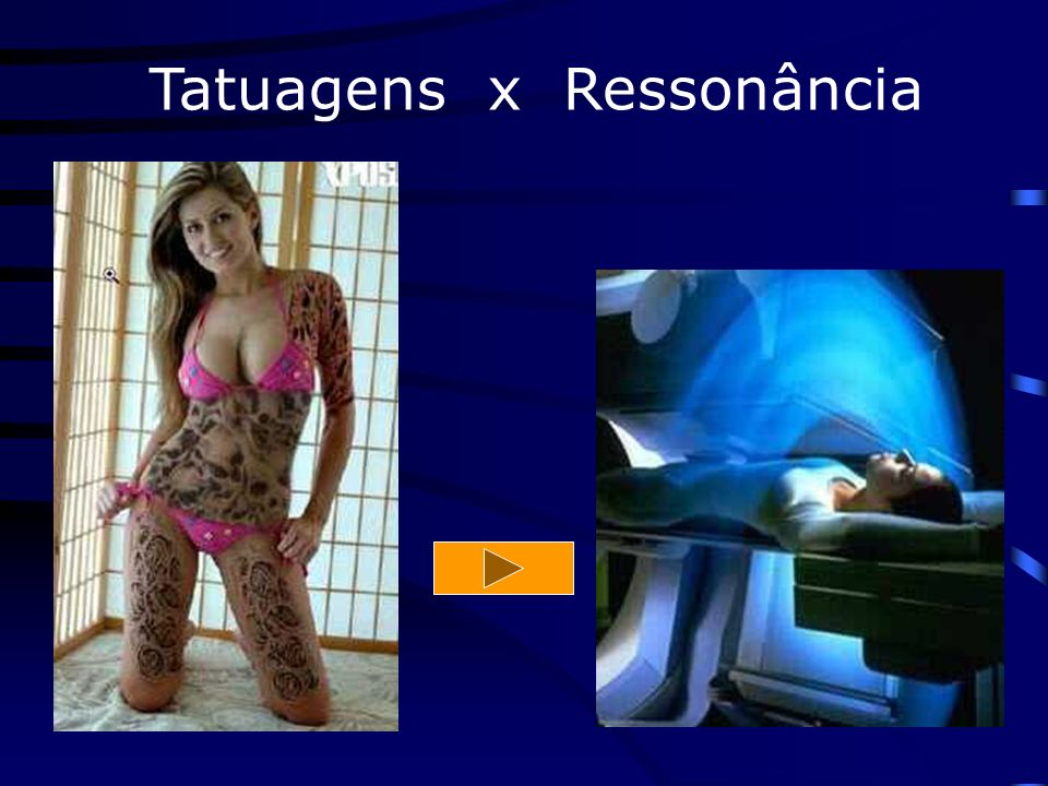 Tatuagens x Ressonância