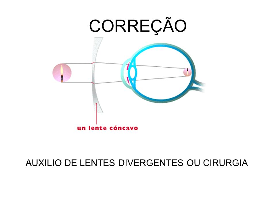 CORREÇÃO AUXILIO DE LENTES DIVERGENTES OU CIRURGIA