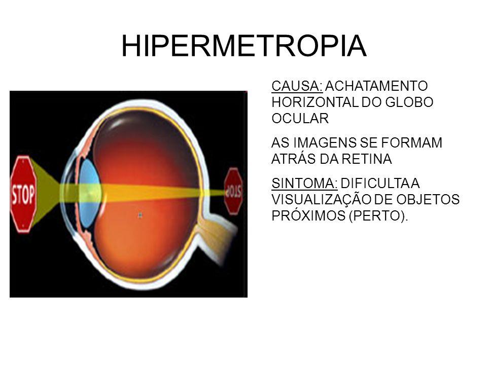 HIPERMETROPIA CAUSA: ACHATAMENTO HORIZONTAL DO GLOBO OCULAR