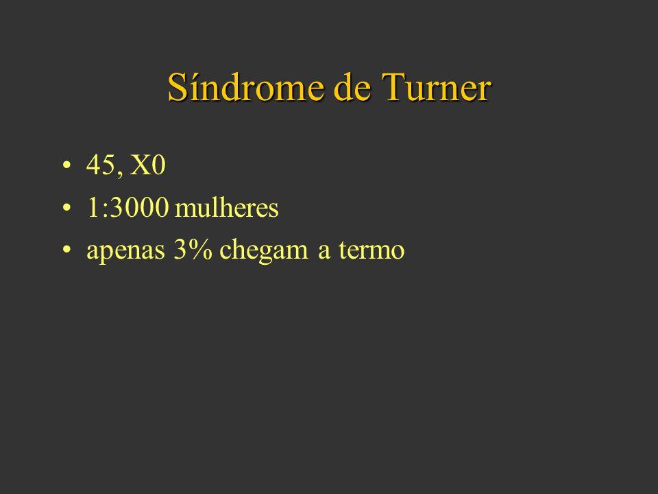 Síndrome de Turner 45, X0 1:3000 mulheres apenas 3% chegam a termo
