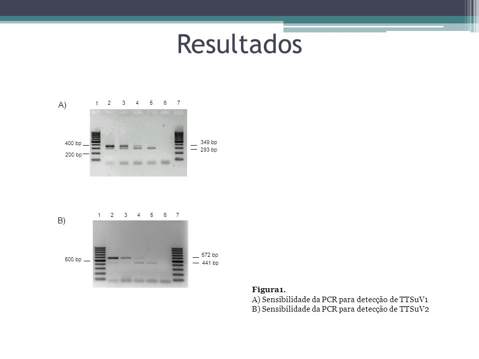 Resultados A) B) Figura1.