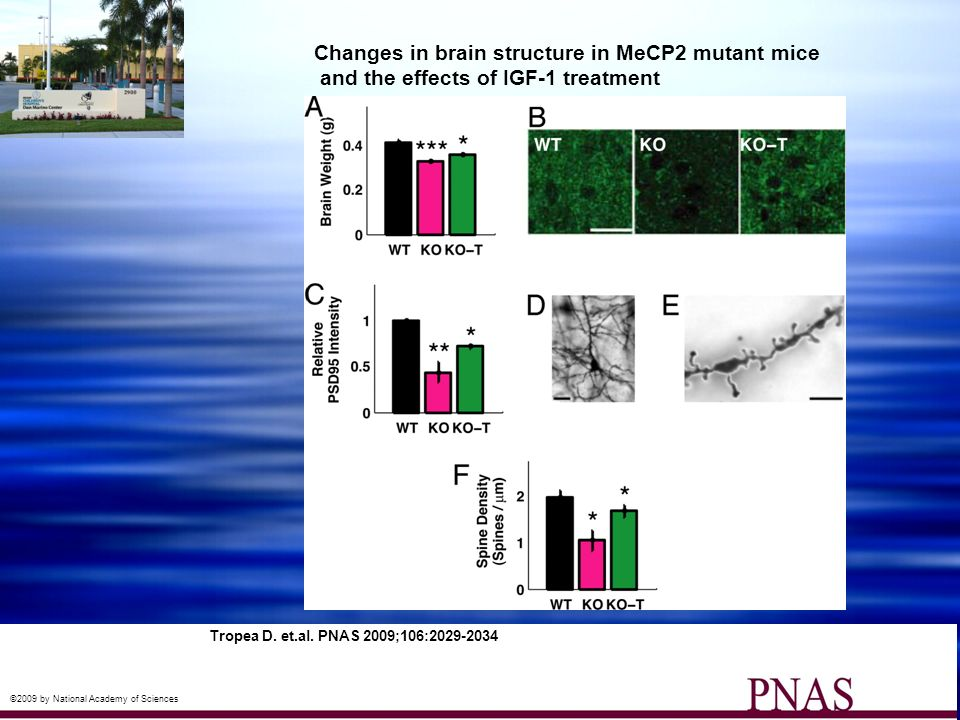 Changes in brain structure in MeCP2 mutant mice