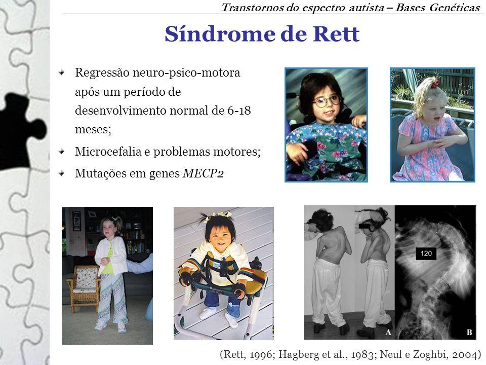 Síndrome de Rett Transtornos do espectro autista – Bases Genéticas
