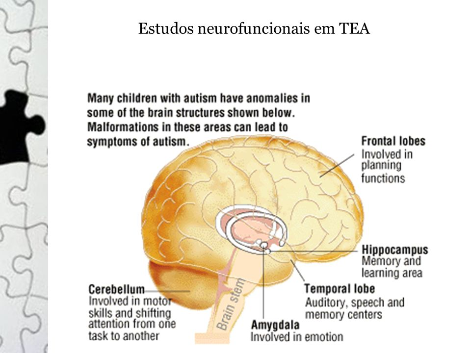 Estudos neurofuncionais em TEA