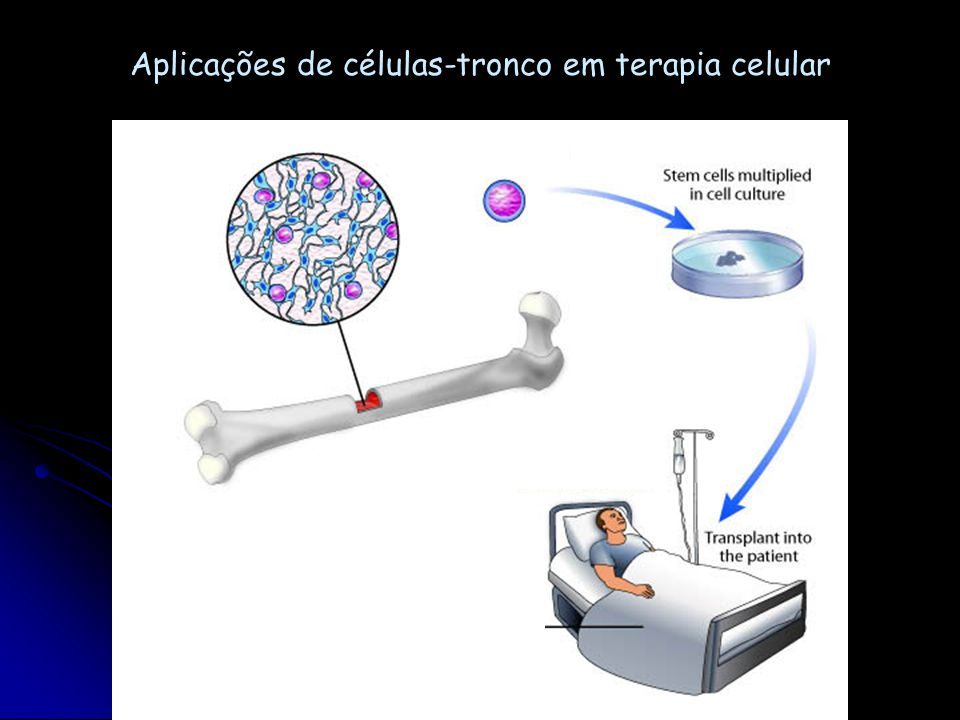 Aplicações de células-tronco em terapia celular