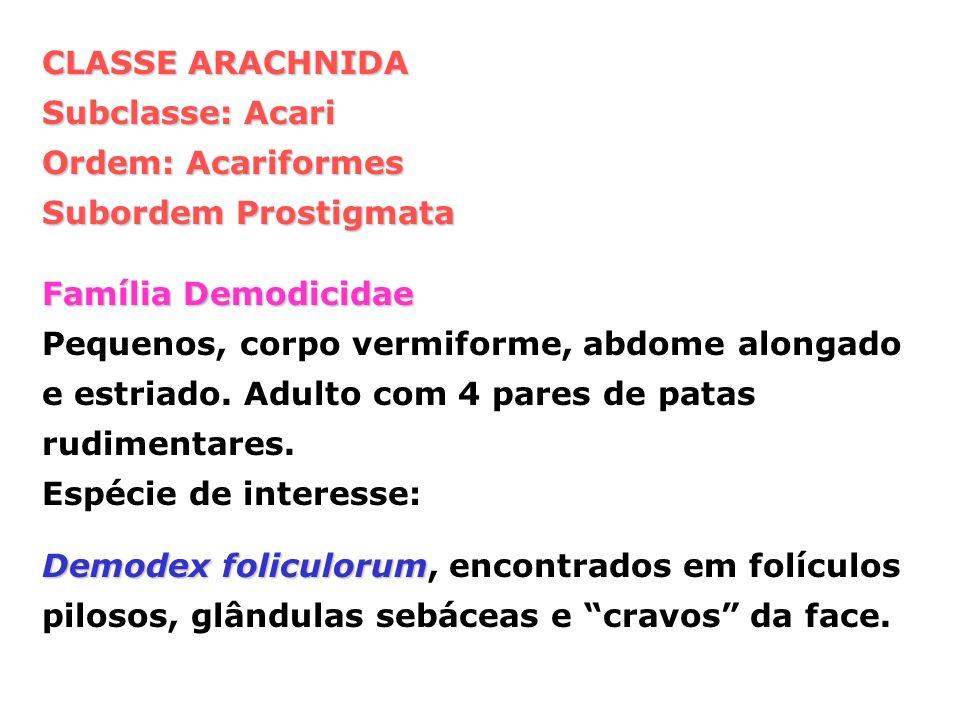 CLASSE ARACHNIDA Subclasse: Acari. Ordem: Acariformes. Subordem Prostigmata. Família Demodicidae.