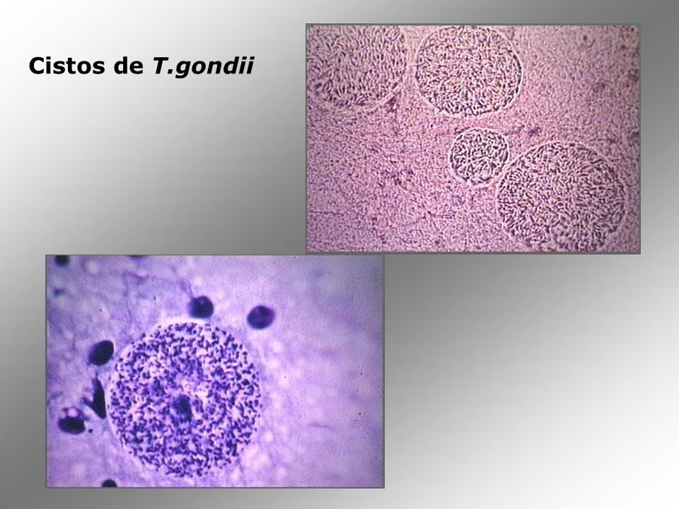 Cistos de T.gondii