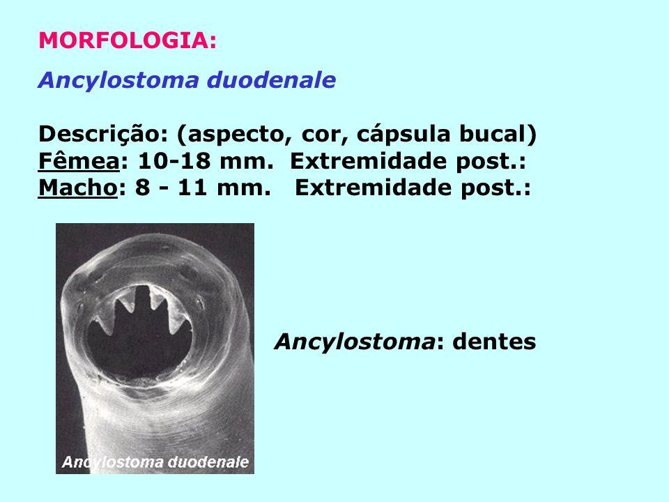 MORFOLOGIA: Ancylostoma duodenale. Descrição: (aspecto, cor, cápsula bucal) Fêmea: 10-18 mm. Extremidade post.: