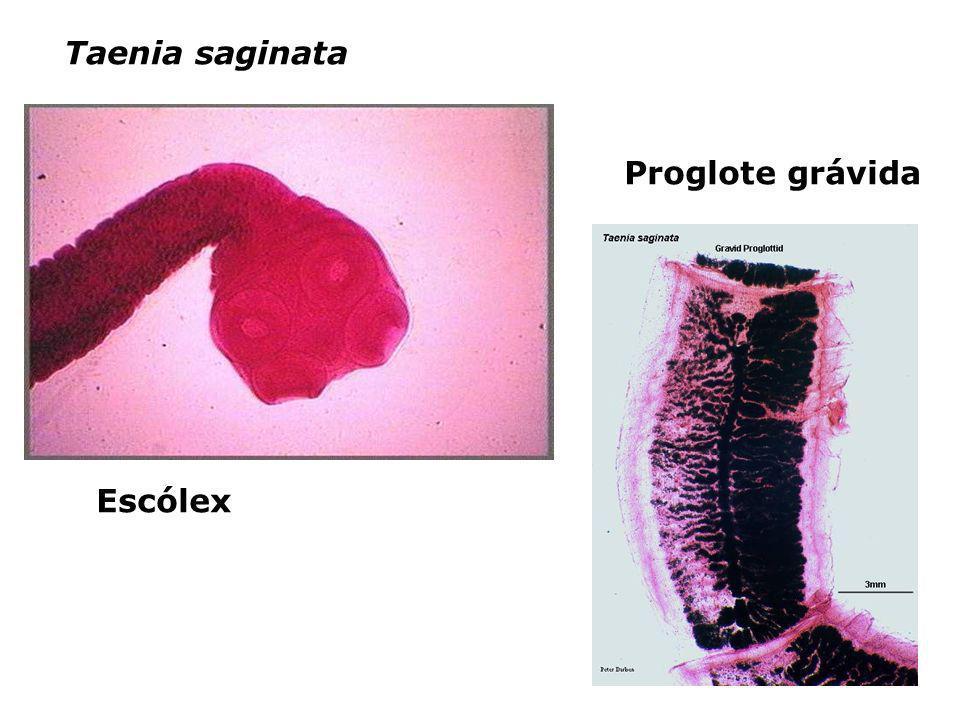 Taenia saginata Proglote grávida Escólex