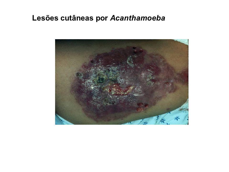 Lesões cutâneas por Acanthamoeba